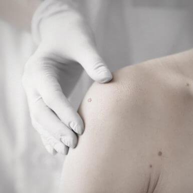 Medizinische Dermatologie