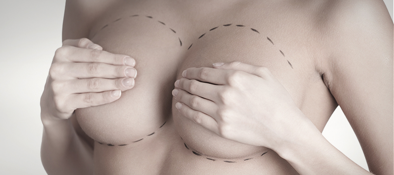 Bruststraffung bei grossen Brüsten